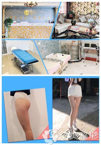 烟台王玉珍左大腿吸脂手术案例