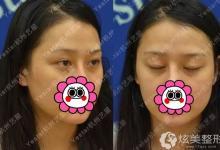 网红自爆两年前做的双眼皮消失在杭州艺星修复高清过程图