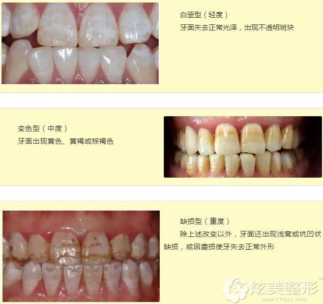 根据轻重程度,氟斑牙分为三种