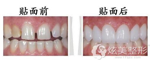 瓷贴面治疗氟斑牙前后对比