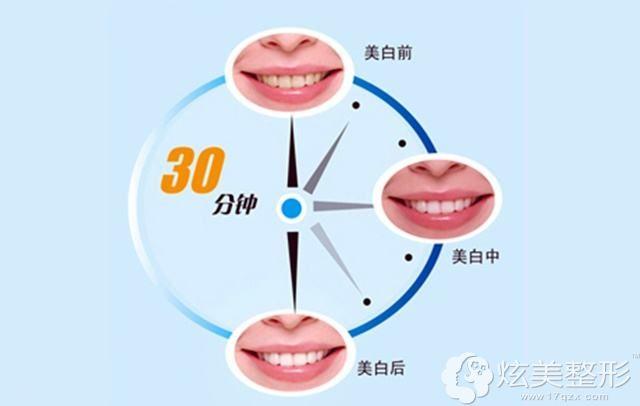 氟斑牙做冷光美白治疗