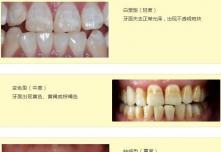 氟斑牙怎么美白?瓷贴面和冷光美白哪个好价格上更有优势
