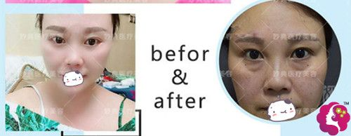 妙典医疗美容诊所外切祛眼袋手术案例