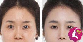 百龄康美激光祛眼袋手术案例