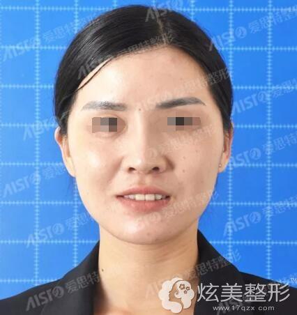 30多岁初老明显面诊重庆爱思特医生