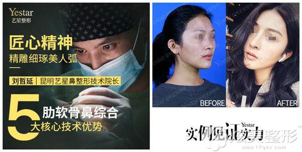 刘哲延:传承郑东学隆鼻技艺