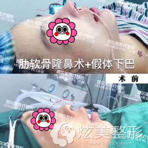 贺尔美做硅胶垫下巴术前术后对比