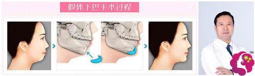 南京贺尔美整形贺永奎院长做硅胶垫下巴手术步骤原理图