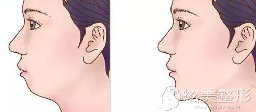 下巴后缩与正常下巴的对比