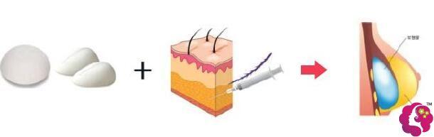 复合式隆胸原理