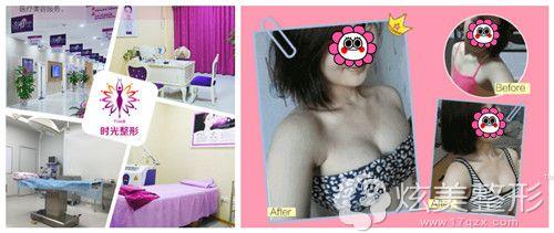桂林时光整形美容门诊部丰胸案例