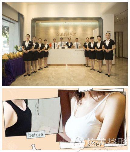 桂林星范整形门诊部隆胸手术案例