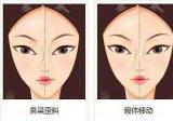 金辉、刘哲延坐诊的昆明艺星鼻子失败修复费用多少钱