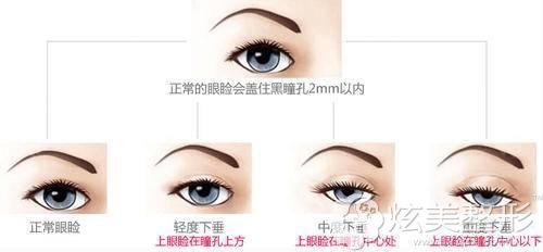 眼部上睑下垂呈现出的不同程度