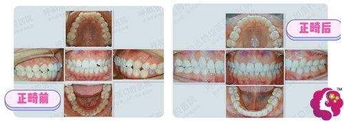 呼和浩特华医口腔医院牙齿矫正案例