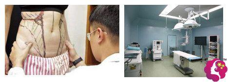 阿蓝维密多维立体吸脂术有详细的方案及安全的手术环境