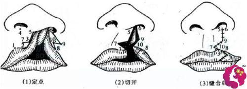 单纯性唇裂手术步骤示意图