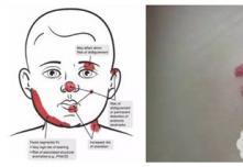 一岁宝宝血管瘤停药后又开始是不是必须激光治疗才能去除
