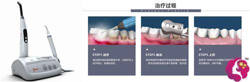 拜博口腔给出超声波洗牙原理和设备图