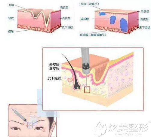 注射玻尿酸去除抬头纹的过程