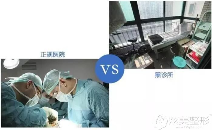 正规机构和小诊所双眼皮费用相差较多