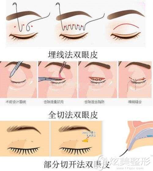 双眼皮分为埋线法、微创法(韩式三点)和全切法三种