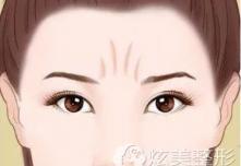 去除眉间川字纹可以注射玻尿酸吗?术后会不会影响做表情