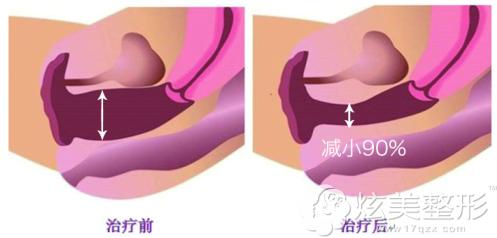 阴道紧缩手术和私密激光都能改善阴道松弛