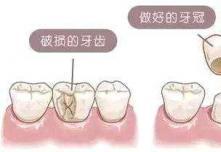 做烤瓷牙疼吗?听说还要磨牙打过麻药之后还会痛吗