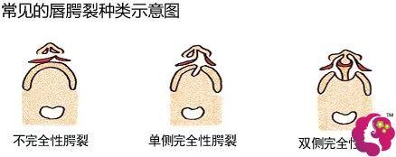 唇裂轻重不同的三种类型