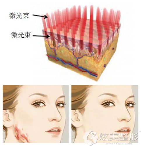 激光祛除疤痕增生对比效果