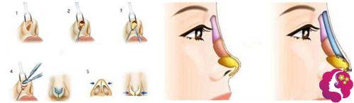 硅胶隆鼻失败修复手术步骤图
