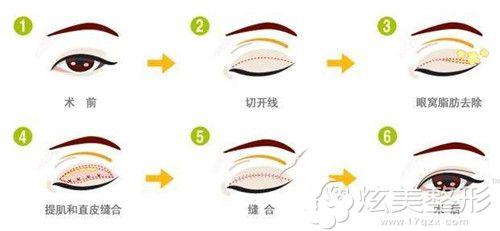 亚韩整形医院纳米双眼皮手术过程