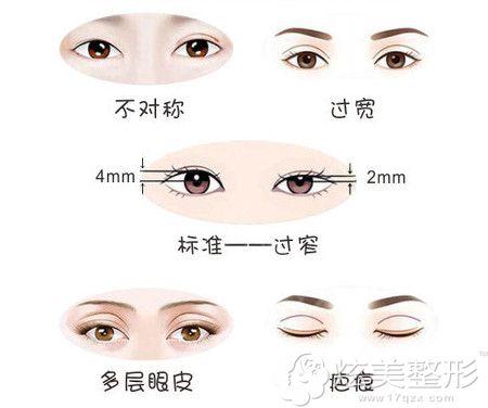双眼皮失败的几大症状