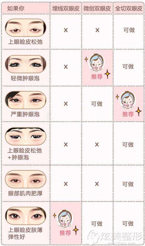 埋线全切韩式三种双眼皮适应人群不同