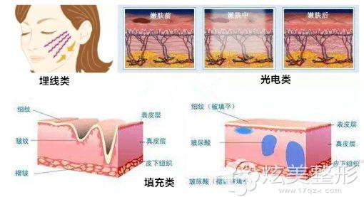 在面部提升中常见的几种改善方式