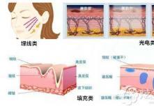 为何韩国清潭First纵深肌理归位术比其他面部提升术贵