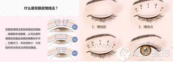 埋线双眼皮原理图示