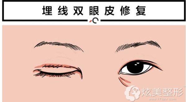 埋线双眼皮取出线材在做全切修复