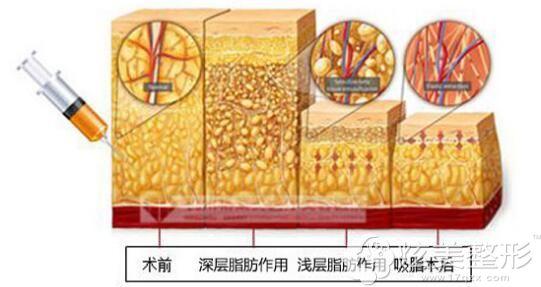 主推多维立体吸脂的德阳金荣整形