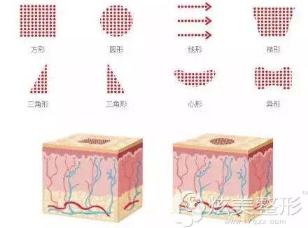 可以自动调节的点阵激光能祛痘痘、痘印和痘坑