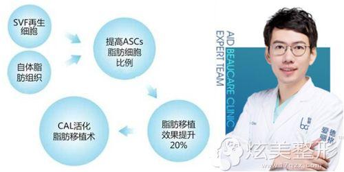 爱德丽格擅长自体脂肪移植的冯勇提出CAL自体脂肪技术