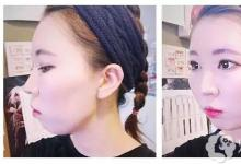 以为没救的突嘴、凹凸颧骨在韩国ID这家脸骨医院被拯救了