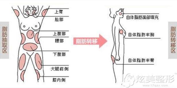 自体脂肪移植的原理