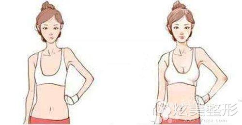 做自体脂肪丰胸后平胸变未自然饱满的大胸
