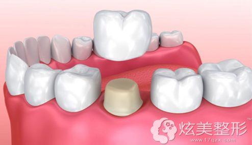 宁波牙博士做全瓷牙手术步骤示意图