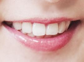 全瓷牙改善氟斑牙爱尔创和威兰德选哪个