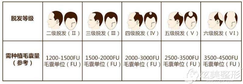 脱发等级不同需要种植的毛囊参考