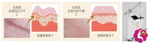 采用激光祛除疤痕的手术步骤示意图