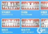 20岁牙齿矫正晚不晚?广州圣贝讲不晚双11面诊价钱很划算